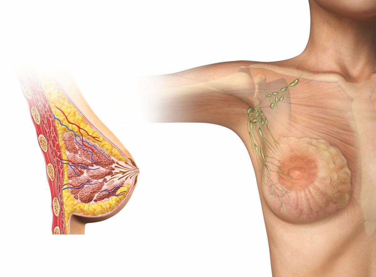 Der Plaststoff der Brust nach der Abtragung